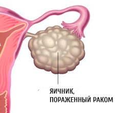 Если болят яичники у женщин что это может быть