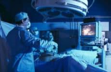 Что такое лапароскопия и как ее делают