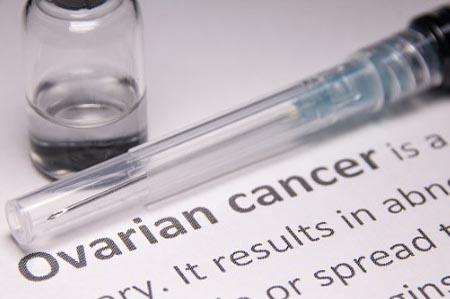 Одни из первых признаков рака яичников