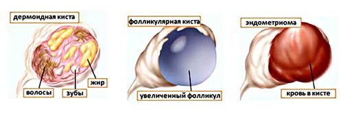Типология кистозных новообразований