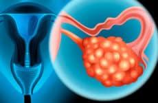 Виды, эффективность и последствия химиотерапии при раке яичников
