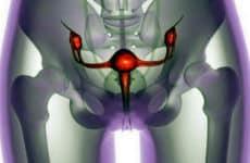 Что такое саркома яичников и как ее лечить