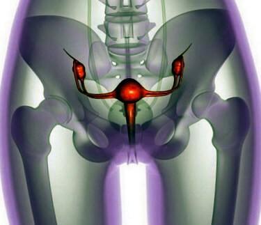 Опухолевидное новообразование яичника