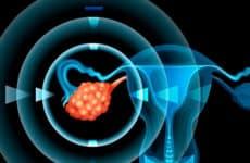 Симптомы, причины и лечение рака яичников