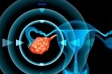 Раковые клетки придатка
