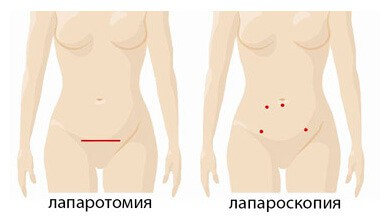 Отличия между лапаротомией и лапароскопией