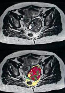 Полученные снимки в результате прохождения МРТ