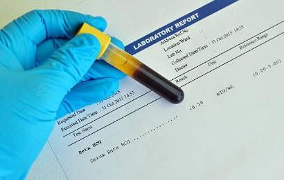 Сдача крови на раковые клетки яичников
