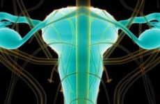 Что такое тубоовариальний абсцесс яичников