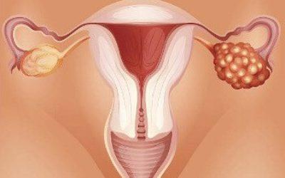 Классификация рака яичников по стадиям