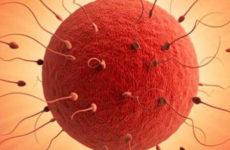 Что такое низкий овариальный резерв яичников и как его повысить