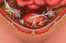 Могут ли образоваться спайки после лапароскопии