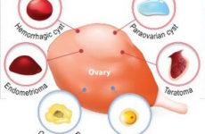 Какие бывают кисты яичников у женщин