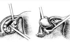 Подготовка и проведение цистэктомии кисты яичника
