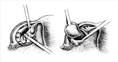 Хирургия и репродуктивные женские органы