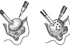 Особенности проведения термокаутеризации яичников
