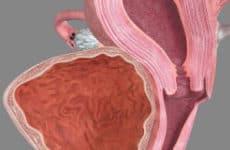 Причины появления и лечение абсцесса яичника