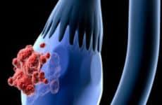 О чем говорит новообразование на яичнике и какое требуется лечение