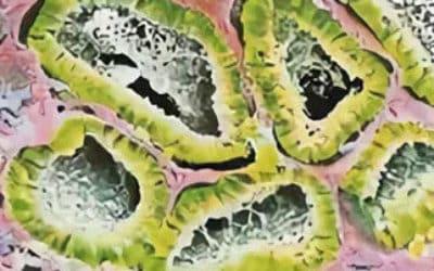 Причины появления, симптомы и лечение андробластомы яичника