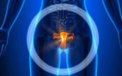 Причины, лечение и рецидивы при мезотелиоме яичника