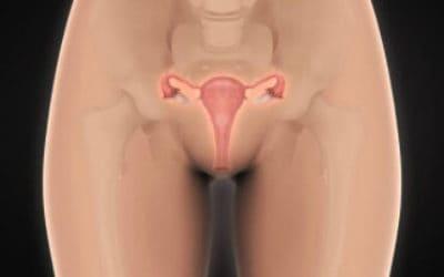 Почему в яичниках созревает много фолликулов и чем это грозит