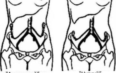 Проведение транспозиции яичников