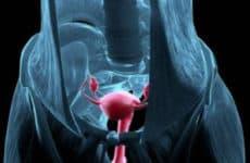 Почему яичник припаян или находится за маткой