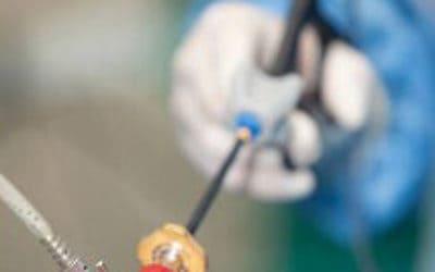 Обязательна ли операция при кистоме больших размеров