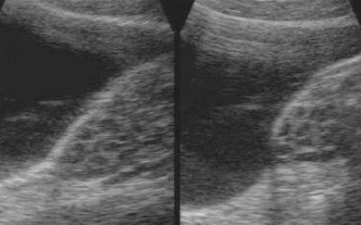 Симптомы и лечение мультикистозных яичников