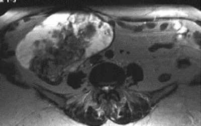Причины появления и лечение кистомы правого яичника