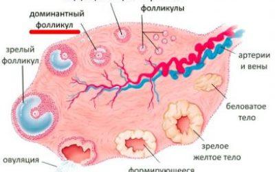 Причины и лечение отсутствия доминантного фолликула